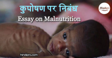 कुपोषण पर निबंध Essay on Malnutrition in Hindi